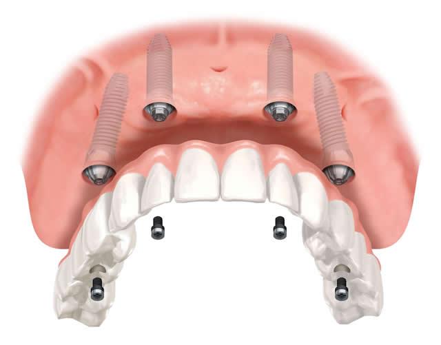Cos'è l'Implantologia All on Four?