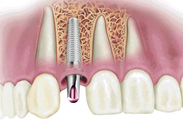 Cos'è l'Implantologia dentale?