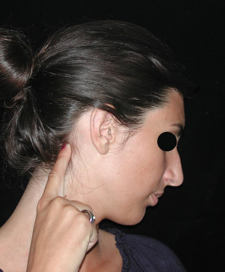 Dolore muscolo semispinale della testa
