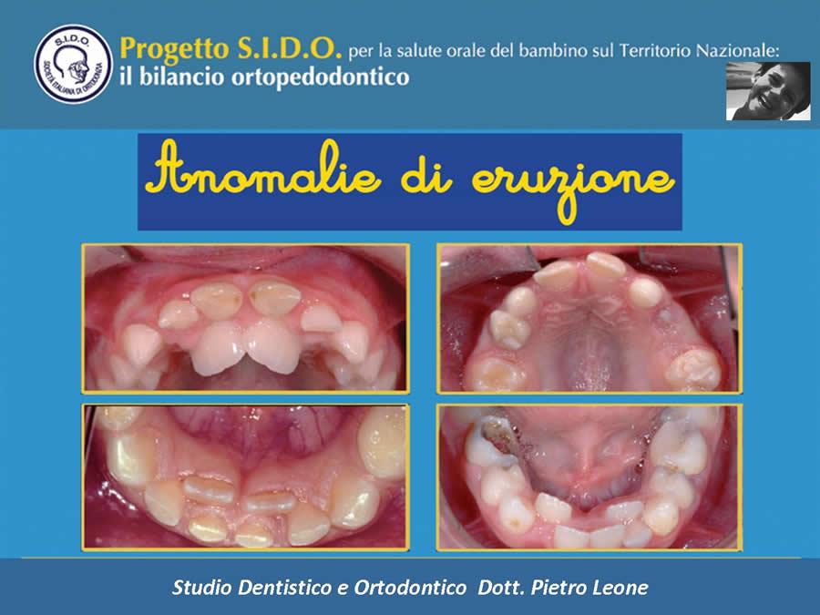 Bilancio Ortopedodontico