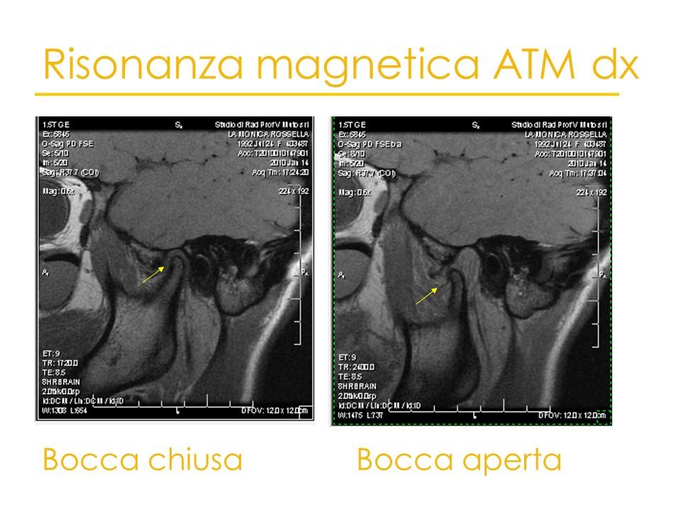 dislocamento del disco articolare