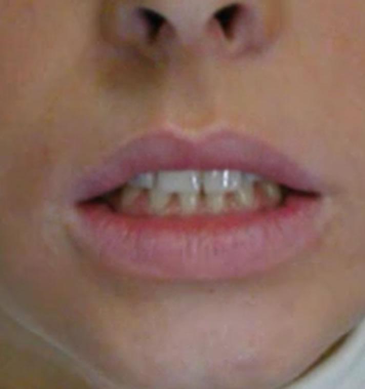 tragitto-mandibolare-deviato