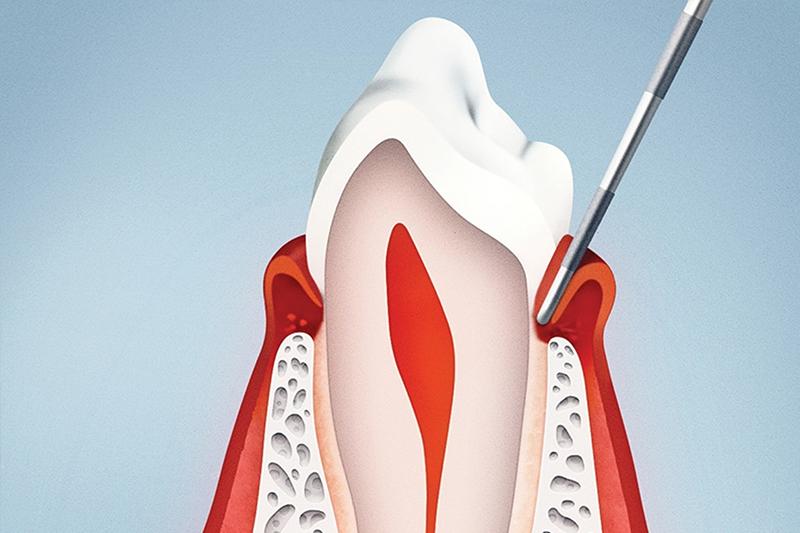 Genetica e malattia parodontale
