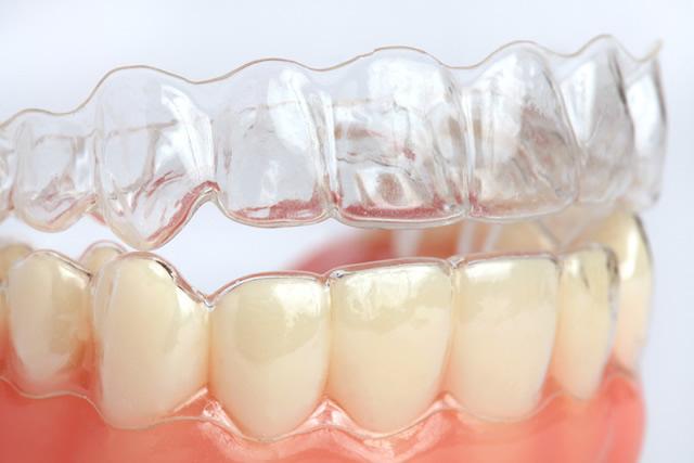 L'ortodonzia