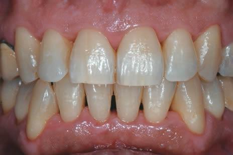 Il successo delle terapie parodontali